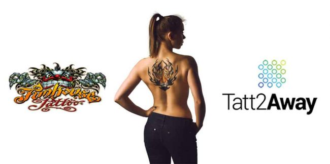 Tatt2Away's Non Laser Tattoo Removal and its benefits over traditional laser tattoo removal.